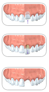 traumatic-tooth-injuries